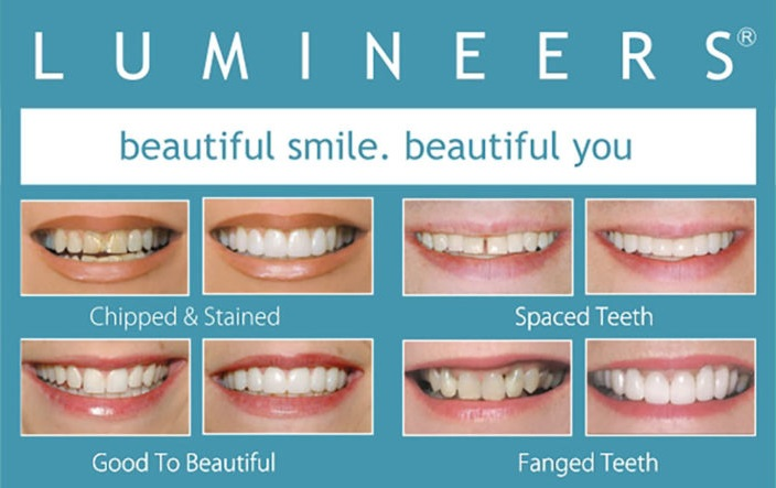 a photo before/after comparison of how lumineers can improve your smile!